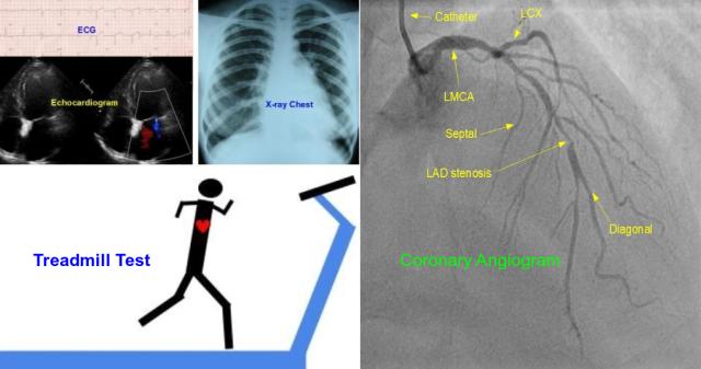 ECG-TMT-Echo-Coronary Angiogram