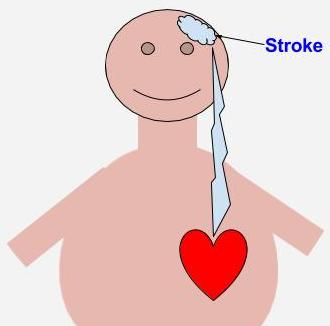 Stroke and heart disease