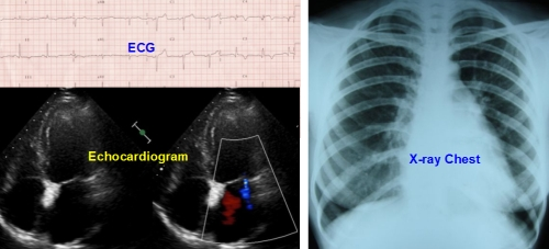ECG - X-ray Chest - Echocardiogram