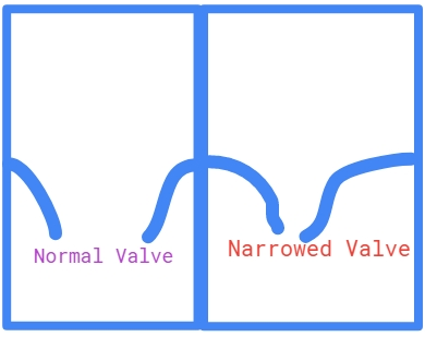 Narrowed heart valve